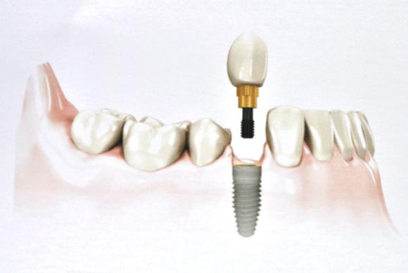 Substituição de um dente