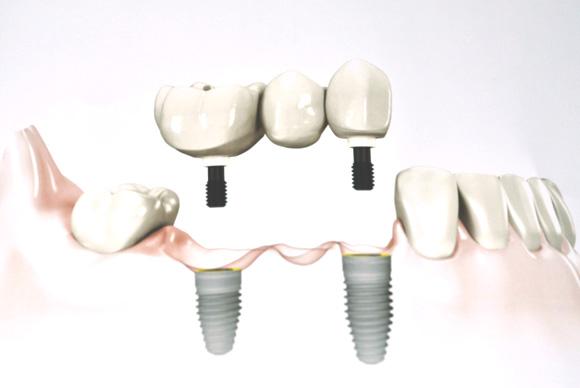 Substituição de vários dentes