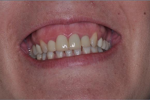 Antes do tratamento (sorriso gengival)