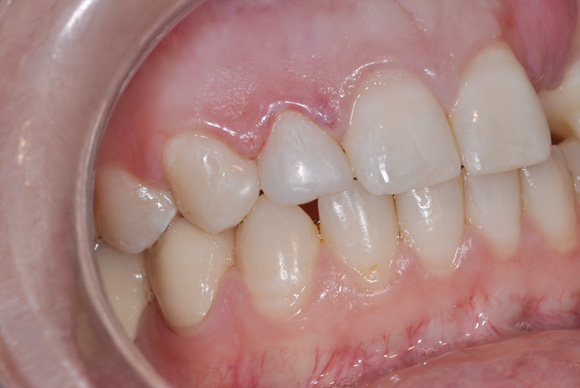 Incisivo restaurado com encerramento de diastema